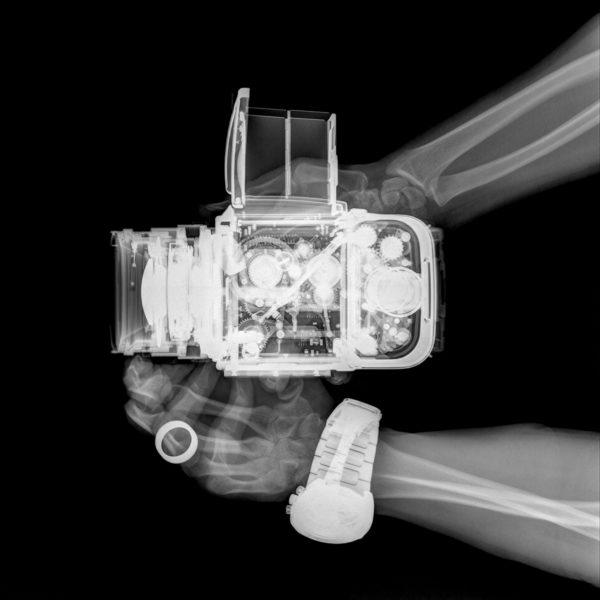 x-ray cameras